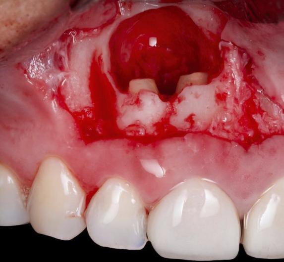 ADVANCED ENDODONTIC PRACTICE (AEP) | London Dental Academy